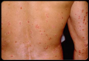 急性点滴状银屑病症状是什么