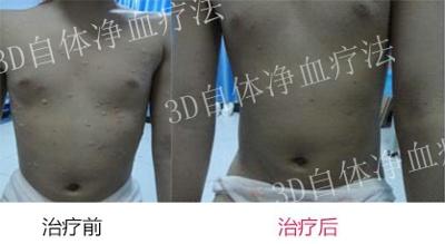 郑州市银屑病3d自体净血疗法怎么样