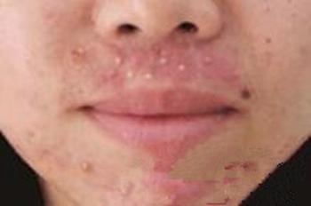 面部脓疱型牛皮癣症状是什么