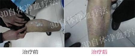 郑州哪个医院治疗银屑病好