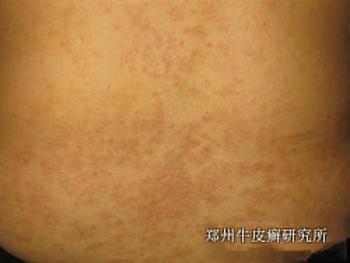 扁桃体发炎对牛皮癣发病有什么影响