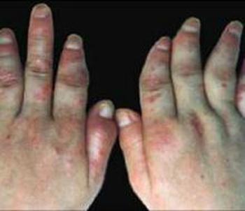 关节型银屑病怎么治疗