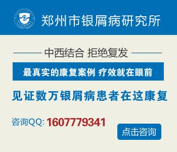 郑州治疗牛皮癣最好的医院