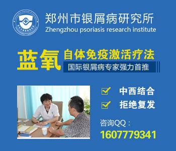 郑州专治牛皮癣的医院