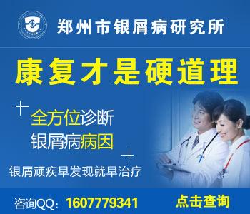 河南治疗银屑病医院