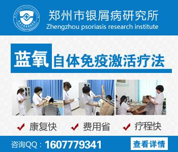 郑州哪里治疗牛皮癣权威