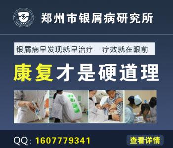 郑州治疗牛皮癣最好医院