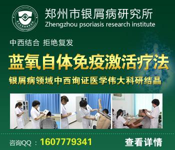 河南省治疗牛皮癣最好的医院