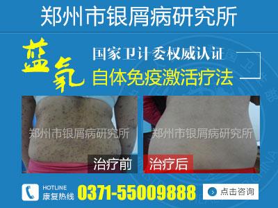 郑州哪里治疗银屑病效果最好