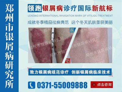 郑州哪个医院治疗银屑病效果好