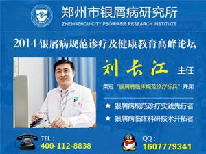 郑州市银屑病哪里治疗的好