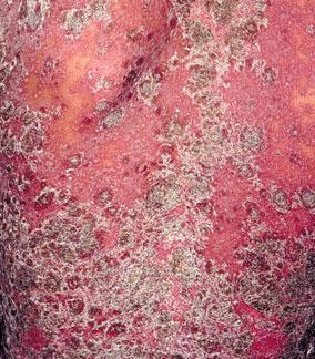 红皮型银屑病危害有哪些