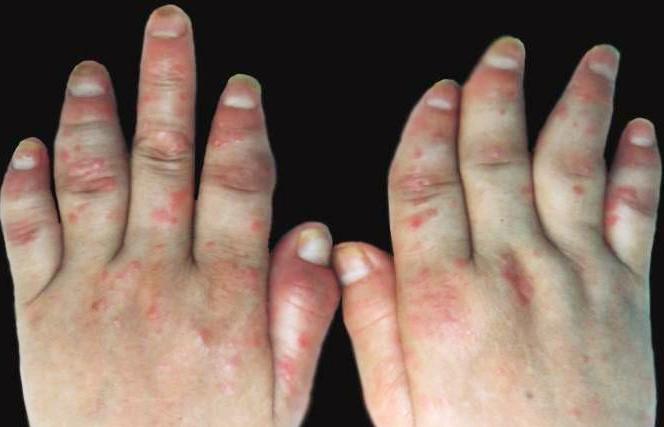 关节型牛皮癣的症状类型