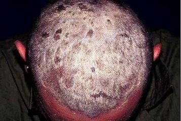如何缓解牛皮癣患者皮肤瘙痒