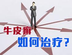 郑州治疗牛皮癣哪家好?