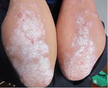 什么是点滴型银屑病?如何治疗?